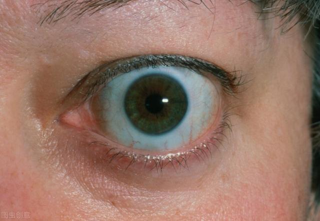 甲亢症状有哪些症状,眼球突出是因为甲亢吗?甲亢有什么症状及表现