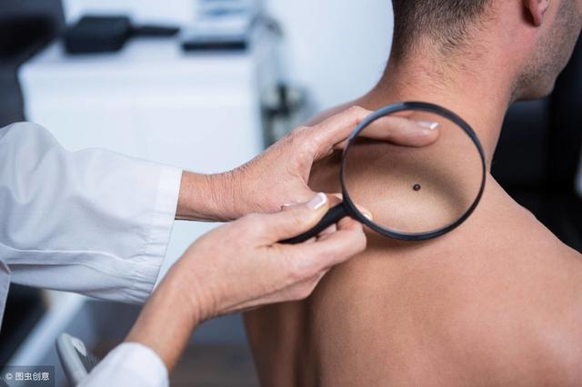 黑痣图片,皮肤长出这种痣,十有八九是黑色素瘤!医生提醒:请及时切除