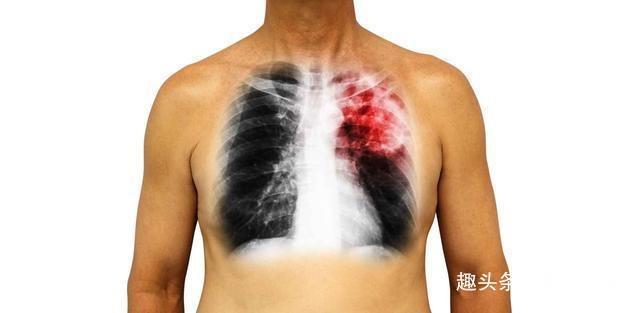 肺炎的症状有哪些症状,肺炎是怎么来的,6个表现提示你可能患上肺炎,注意检查