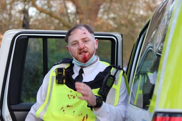 英国爆发反封锁暴力冲突:警察头破血流 和抗议者扭打一团 全球新闻风头榜 第2张