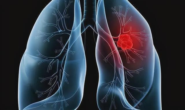 肺病有哪些,中医小课堂丨肺癌有哪些早期信号?