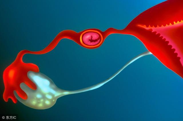 只剩单侧输卵管,会让受孕几率减半,这样做能保护输卵管