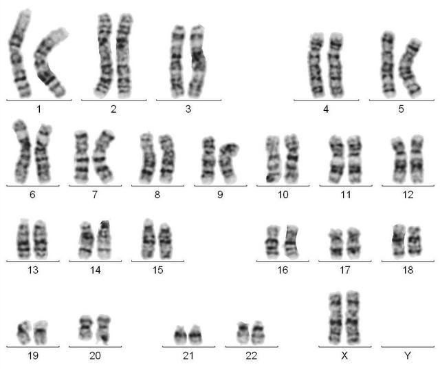 产前检查,不容忽视的染色体异常