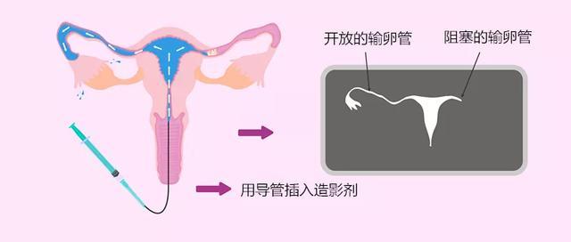 输卵管——女性怀孕的必要通