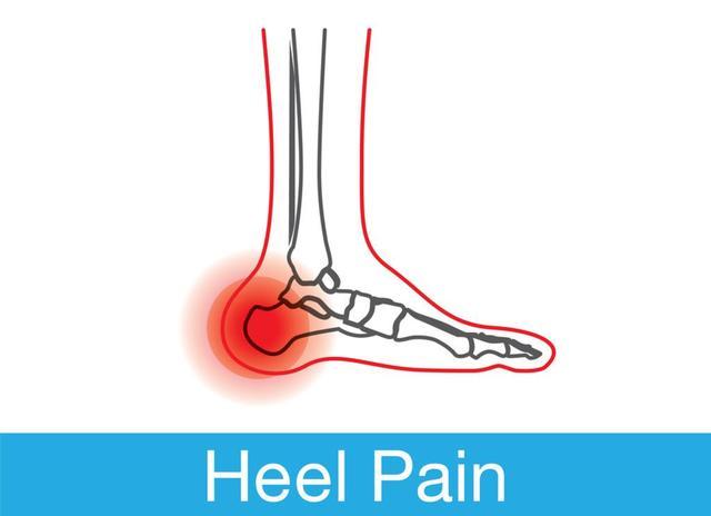 孩子足跟痛,病因主要分3类