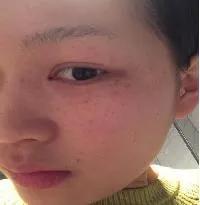 皮肤有哪些功能(皮肤有哪些生理功能)插图15