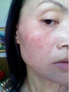皮肤有哪些功能(皮肤有哪些生理功能)插图19