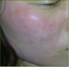 皮肤有哪些功能(皮肤有哪些生理功能)插图20